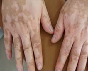 白斑的早期症状图片表现是什么