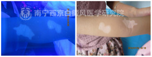 儿童手臂白斑康复案例,3岁女童抗斑记