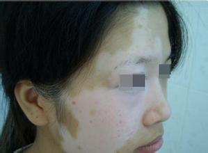 脸长白斑为什么,怎么治疗