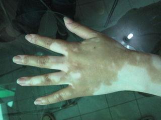手部白癜风病情加重为什么